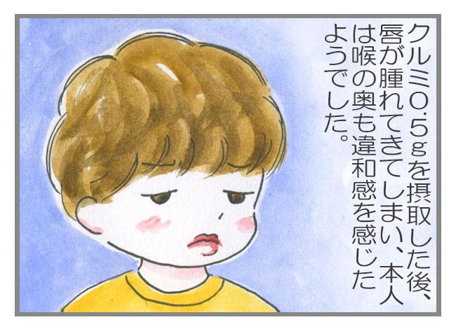 食物アレルギー負荷試験  〜4〜 クルミ