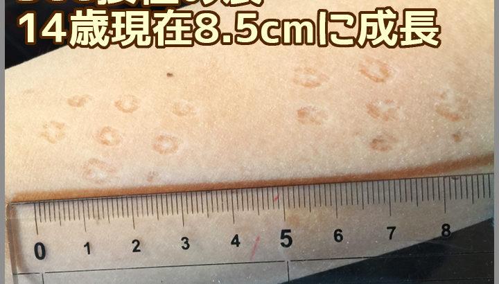 娘のハンコ注射(BCG)痕が消えないどころか大きくなってる!?
