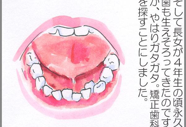 歯の矯正が必要?4箇所で診察してもらったらだいぶ違った!